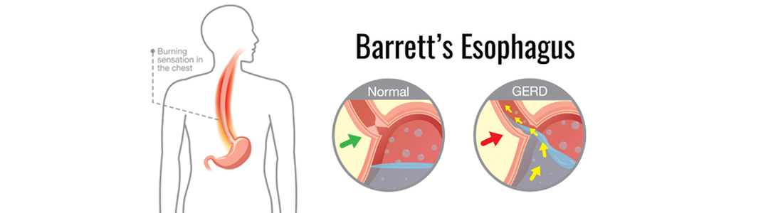 Barrett's Esophagus: Symptoms, Diagnosis